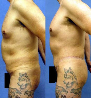 fat injection grafting to buttocks