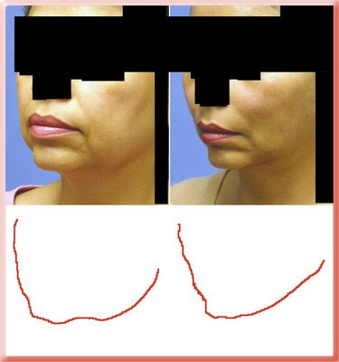 facial contours in the aged and rejuvenated face