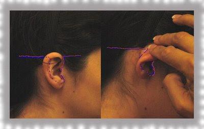 inverted omega incision