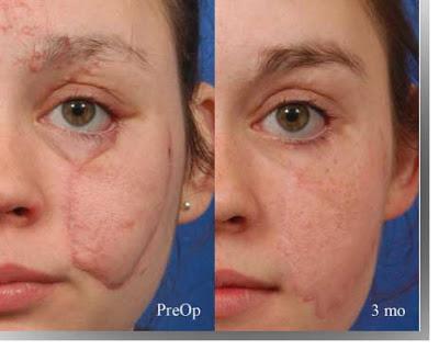 circular face scar