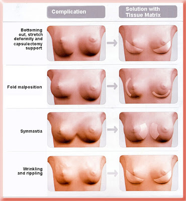 breast implant position or rippling problems