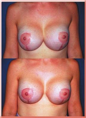 breast implants symmastia synmastia