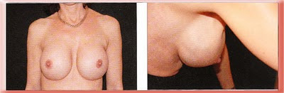 breast implant rippling