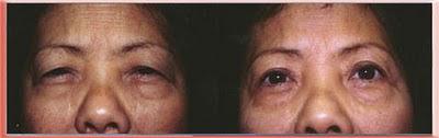 Asian upper blepharoplasty