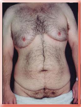 Grade IIIb Gynecomastia