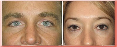 Examples of Tear Trough in Younger Patients Without Protruding Eyelid Fat