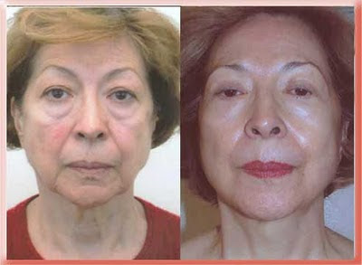 before and after lower blepharoplasty with fat repositioning