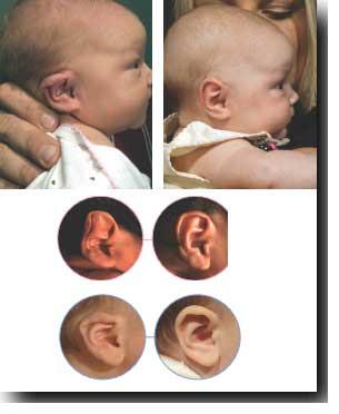 splint for baby ear deformities