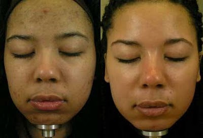 Before and After Dermamelan Treatment