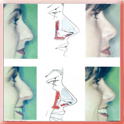 drooping nasal tip