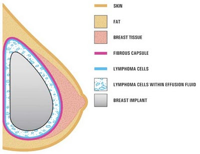 cancer of the breast after breast implant surgery
