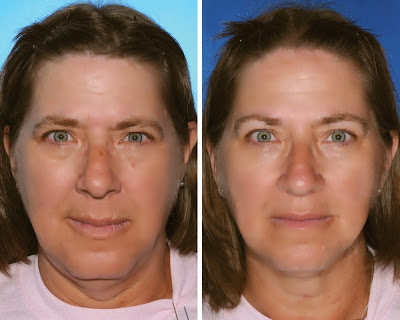 Smoking Adversely Affects Facial Aging