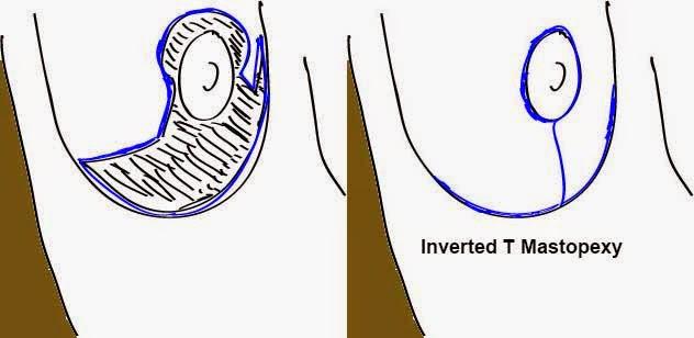 inverted T mastopexy