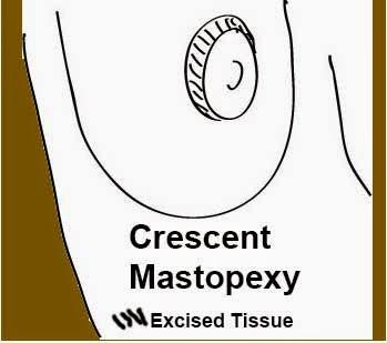 crescent mastopexy