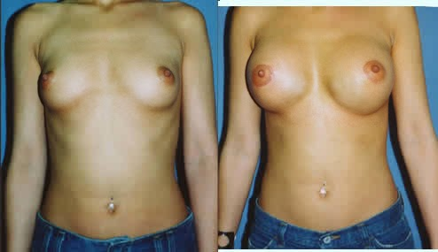 crescent mastopexy with breast augmentation