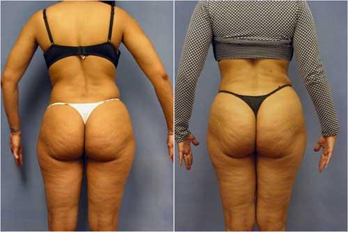 AfroAmerican Abdominoplasty - Tummy Tuck