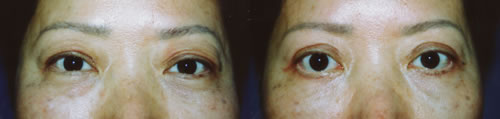 Chinese Asian Upper and Lower Bleparoplasty Los Angeles