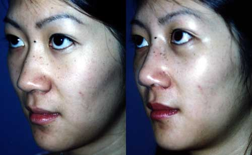 Chinese Asian Rhinoplasty Nose Surgery Los Angeles