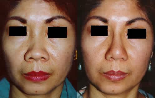Filipino Asian Rhinoplasty Nose Surgery Los Angeles