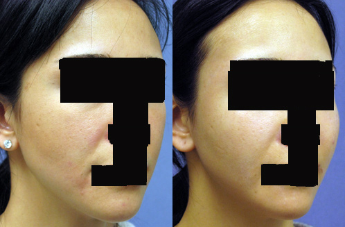 Cheek Implants Los Angeles