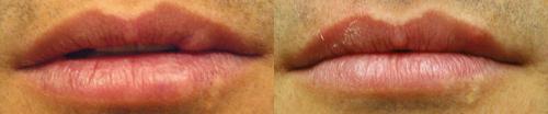 Lip Scar Revision Los Angeles