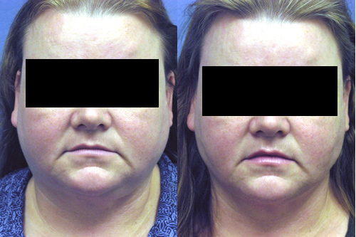 Before and After Redo Liposuction of the Neck in Los Angeles