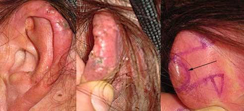 Basal Cell Carcinoma Ear Los Angeles
