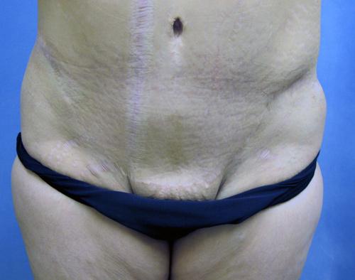 Tummy Tuck - Abdominoplasty Los Angeles