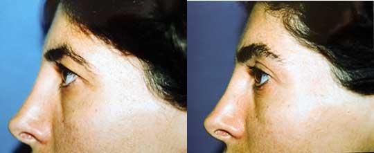 Blepharoplasty Eyelid Surgery Los Angeles