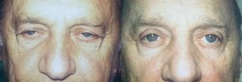 Upper Blepharoplasty Eyelid Surgery Los Angeles