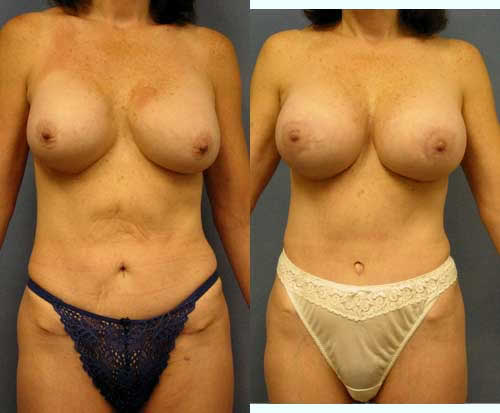 Breast Implant Exchange Removal Capsulectomy Los Angeles