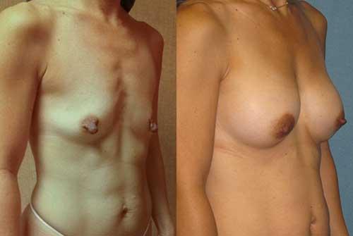 Saline Breast Implants Los Angeles