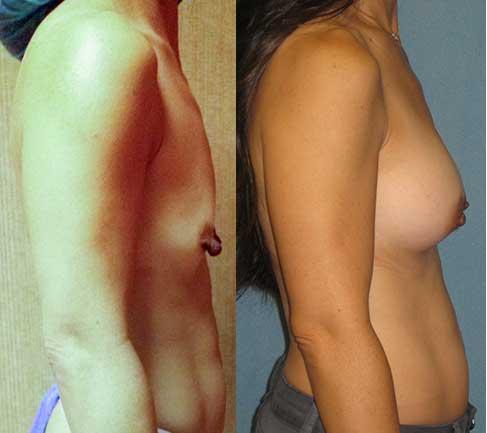 los angeles breast implants jpg 853x1280