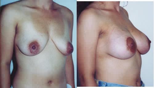 Saline Breast Implants breast enhancement Los Angeles