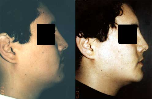 Chin-Implant Los Angeles