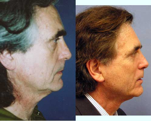 Male Facelift Necklift Los Angeles