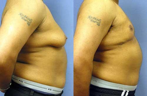 Transgender Mastectomy Los Angeles
