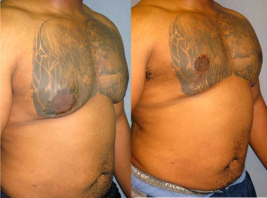 Gynecomastia Revision Redo Los Angeles
