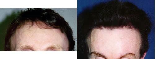 Hairgraft for Male Pattern Baldness Los Angeles