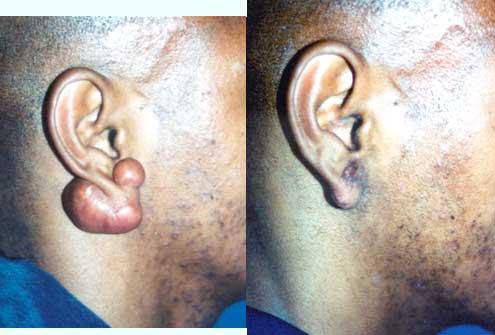 Ear Keloid Los Angeles