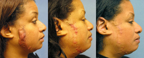 Keloid Face Los Angeles