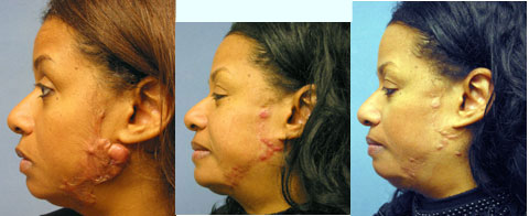 Before and After (without and with makeup) Keloid Scar surgery Removal treatment in Afro American in Los Angeles