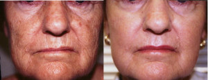 Laser Dermabrasion Skin Resurfacing Wrinkle Removal Los Angeles