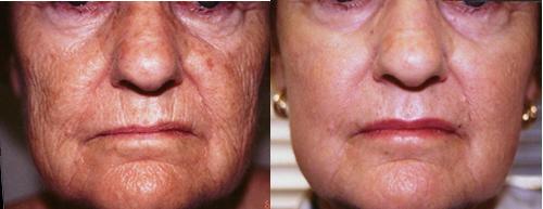 Laser Dermabrasion Skin Resurfacing Wrinkle Removal Los Angeles
