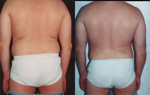 Liposuction Love Handles Los Angeles