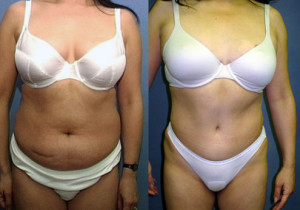 Mommy Makeover Tummy Tuck - Abdominoplasty Los Angeles