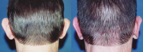Otoplasty - Ear Pinning Los Angeles