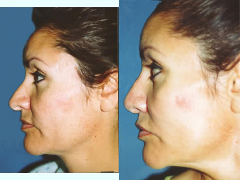 Crooked Nose Deviated Septum Los Angeles