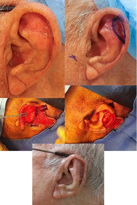 Squamous Cell Carcinoma Ear Los Angeles