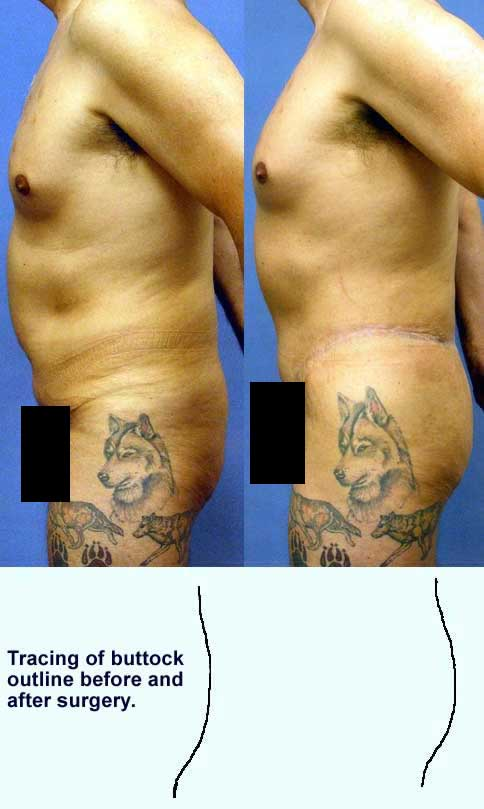 Thigh Buttock Lift - Belt Lipectomy Los Angeles